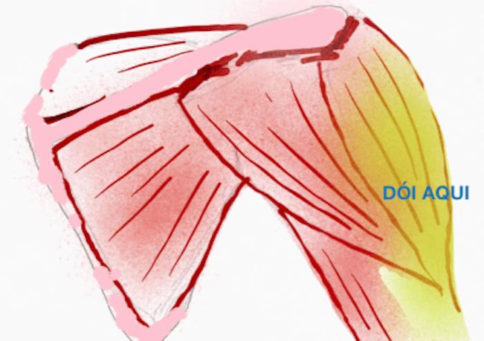 dor no deltóide