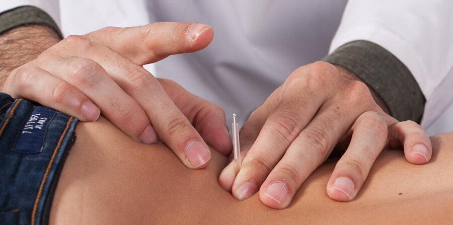 acupuntura na dor
