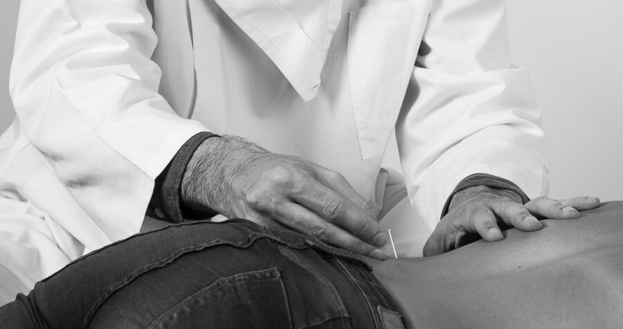 acupuntura para lombalgia