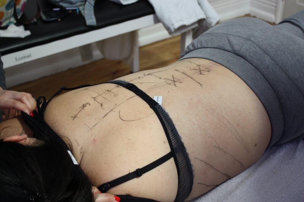 pontos de acupuntura nas costas