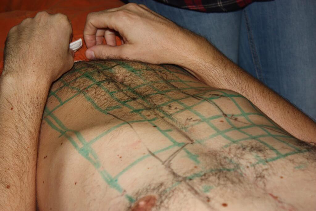 pontos de acupuntura no abdómen