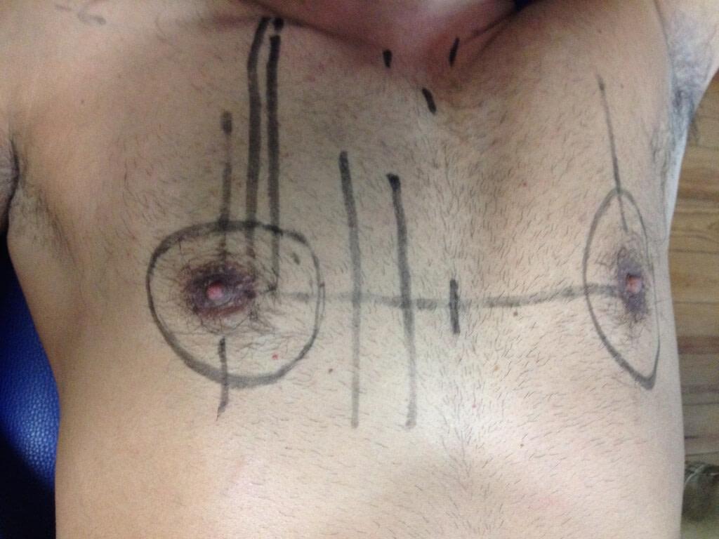 sistema cun peito marcos anatómicos