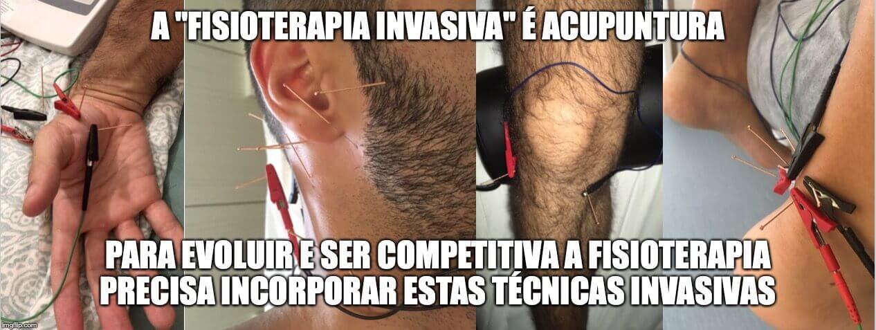 fisioterapia invasiva é acupuntura