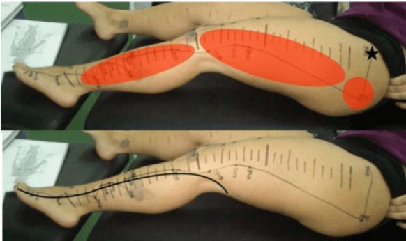 construir vasos longitudinais vesicula biliar