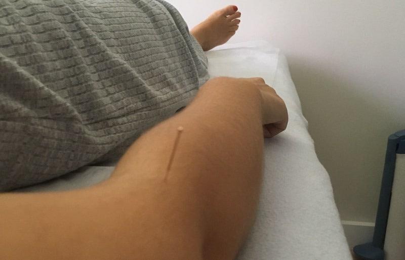 beneficios da acupuntura