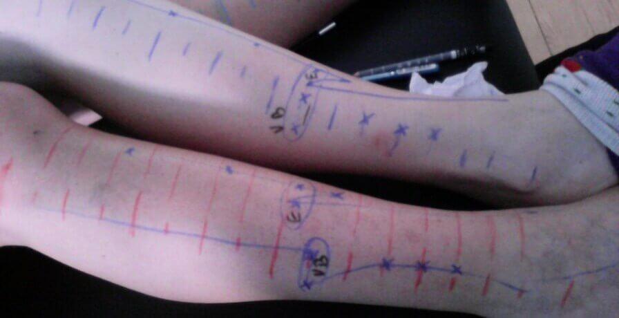 pontos de acupuntura na perna