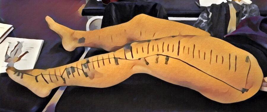 vasos longitudinais vesícula membro inferior