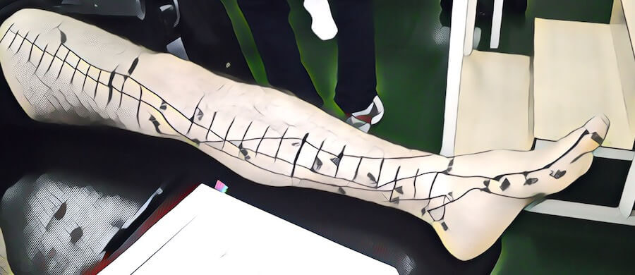 sistema de meridianos yin da perna ficado baço rim