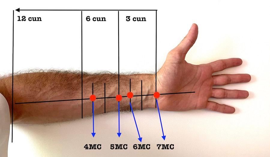 marcos anatómicos e sistema de cun no braço