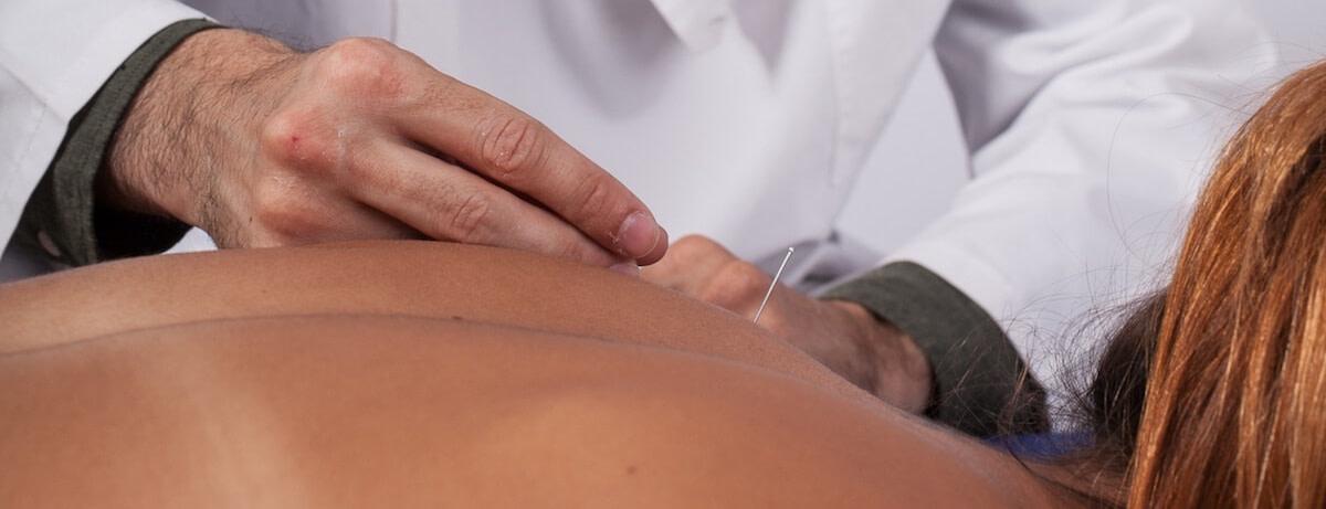terapeutas a fazer acupuntura